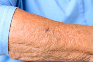 Watch How Sun Doctors Prevent Skin Cancer video