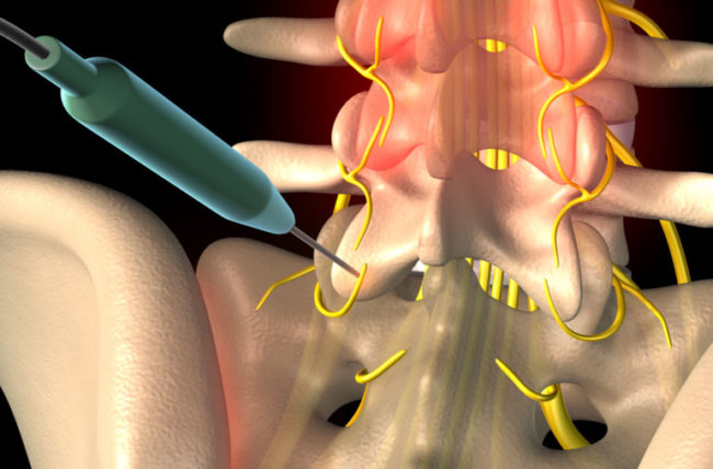radiofrequency ablation for pain
