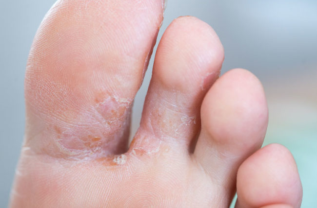 athletes foot fungus