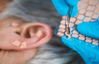 ear beads acupuncture for smoking