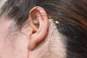 Do You Have an Itchy Scalp? 5 Common Problems and Fixes