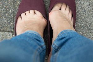 2889f17378e9 7 Ways to Ease Your Bunions Without Surgery – Health Essentials from ...