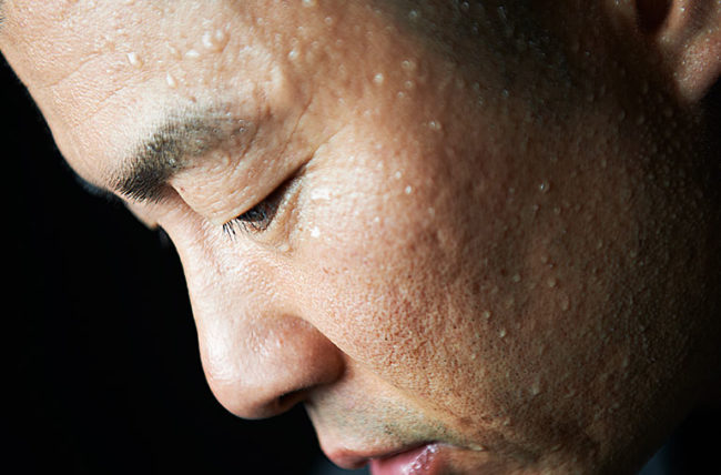 closeup of man's sweating face