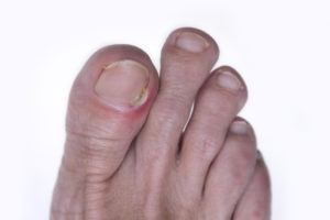 How To Prevent And Treat Ingrown Toenails Health