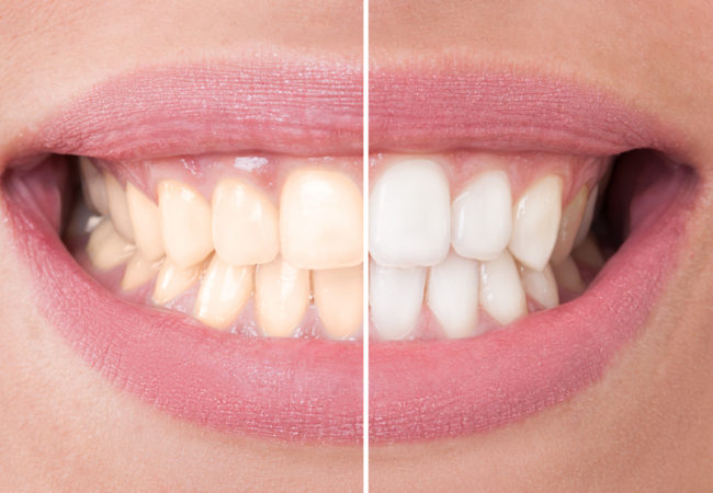 Do teeth whitening kits you use at home really work health do teeth whitening kits you use at home really work solutioingenieria Choice Image
