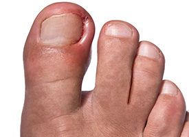 How You Can Prevent and Treat Painful Ingrown Toenails – Health ...