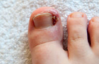 Ingrown and infected toenail