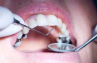 metal tooth fillings in mouth