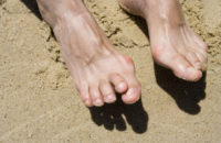 Best Ways You Can Treat, Prevent Hammertoe
