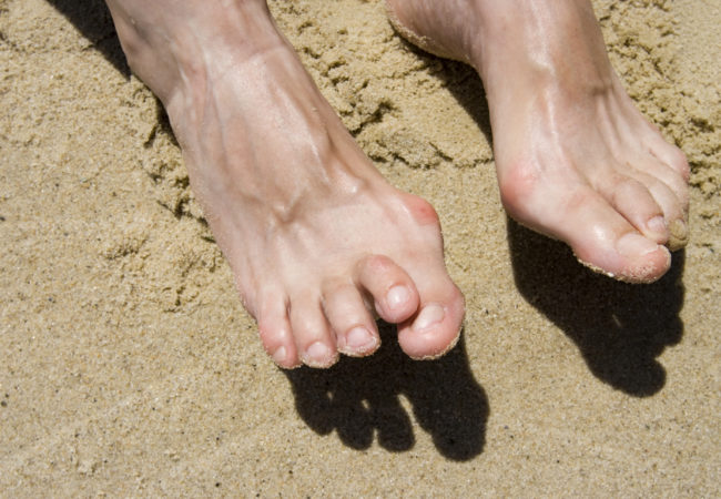 Best Ways You Can Treat, Prevent Hammertoe – Health Essentials from