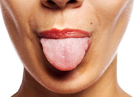 Can advair cause hairy tongue