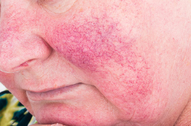 Are Mystery Triggers Causing Your Rosacea Flare Ups Health