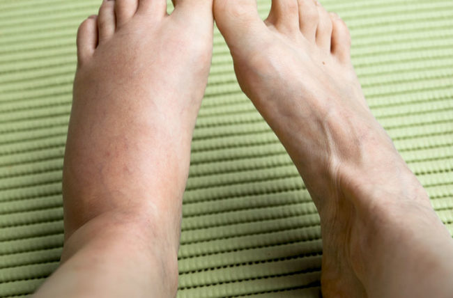 What You Should Know About Swelling in Your Legs – Health Essentials from  Cleveland Clinic