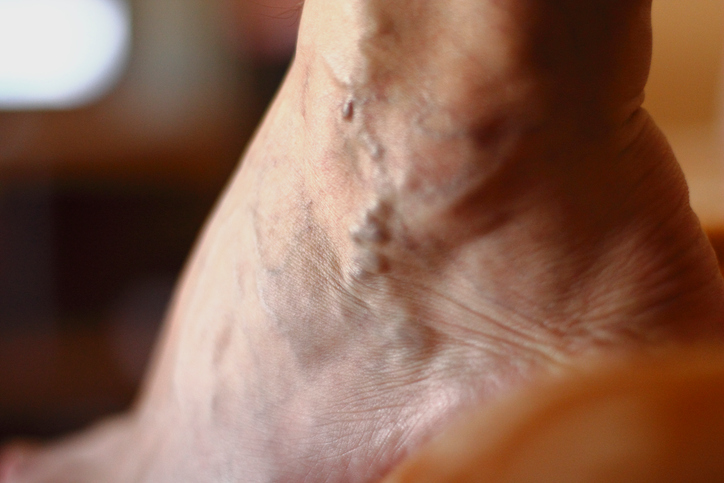 Varicose Veins: 7 Myths You Shouldn't Believe