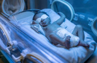 baby being treated for jaundice under lights