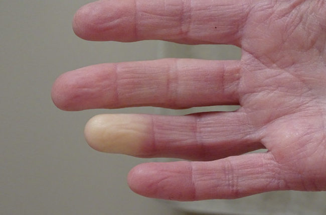 Raynauds syndrome in hand
