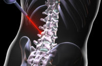 Can Laser Spine Surgery Fix Your Back Pain?