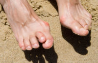 feet with hammertoe affliction