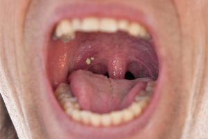 Are Troublesome Tonsil Stones Causing Your Bad Breath
