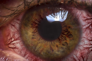Itchy, Red Eyes? How to Tell If It's Allergy or Infection