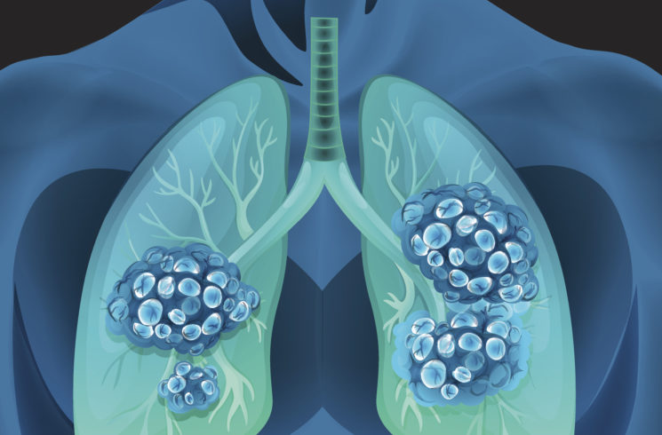 What Are the Chances a Lung Nodule or Spot Is Cancer?