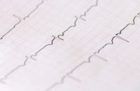 Can You Avoid Irregular Rhythm After Heart Surgery?