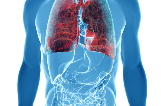 Is Minimally Invasive Surgery for Lung Cancer Best for You?