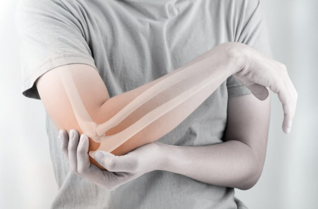 Tendinitis or Tendinosis? Why the Difference Is Important, What Treatments Help