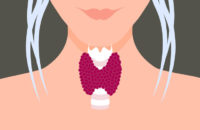 Illustration of older womans neck and her thyroid