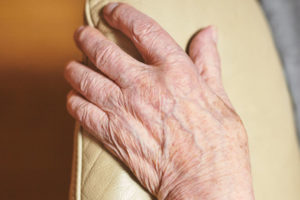 treatment for thin skin on hands