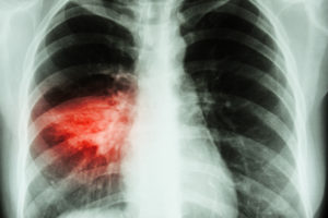 What's the Difference Between Walking Pneumonia and Regular