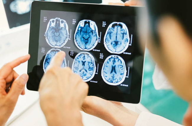 Review brain scans for concussion evidence