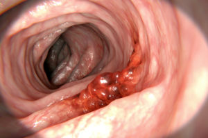 What You Can Do To Catch Colon Cancer Early Health Essentials From Cleveland Clinic