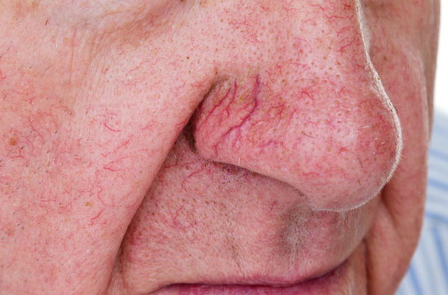 spider veins on man's nose and face