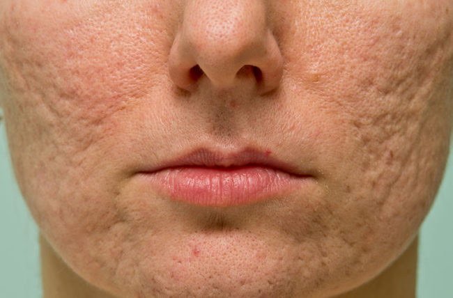 face of woman with acne scarring