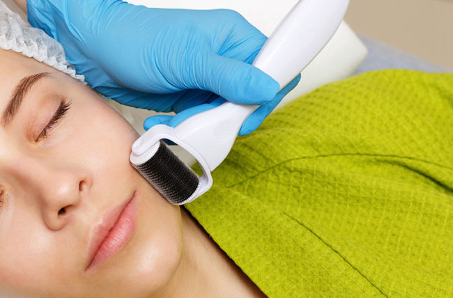 woman undergoing microneedling procedure for wrinkle reduction