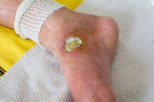 Diabetic Foot Ulcers Why You Should Never Ignore Them Health
