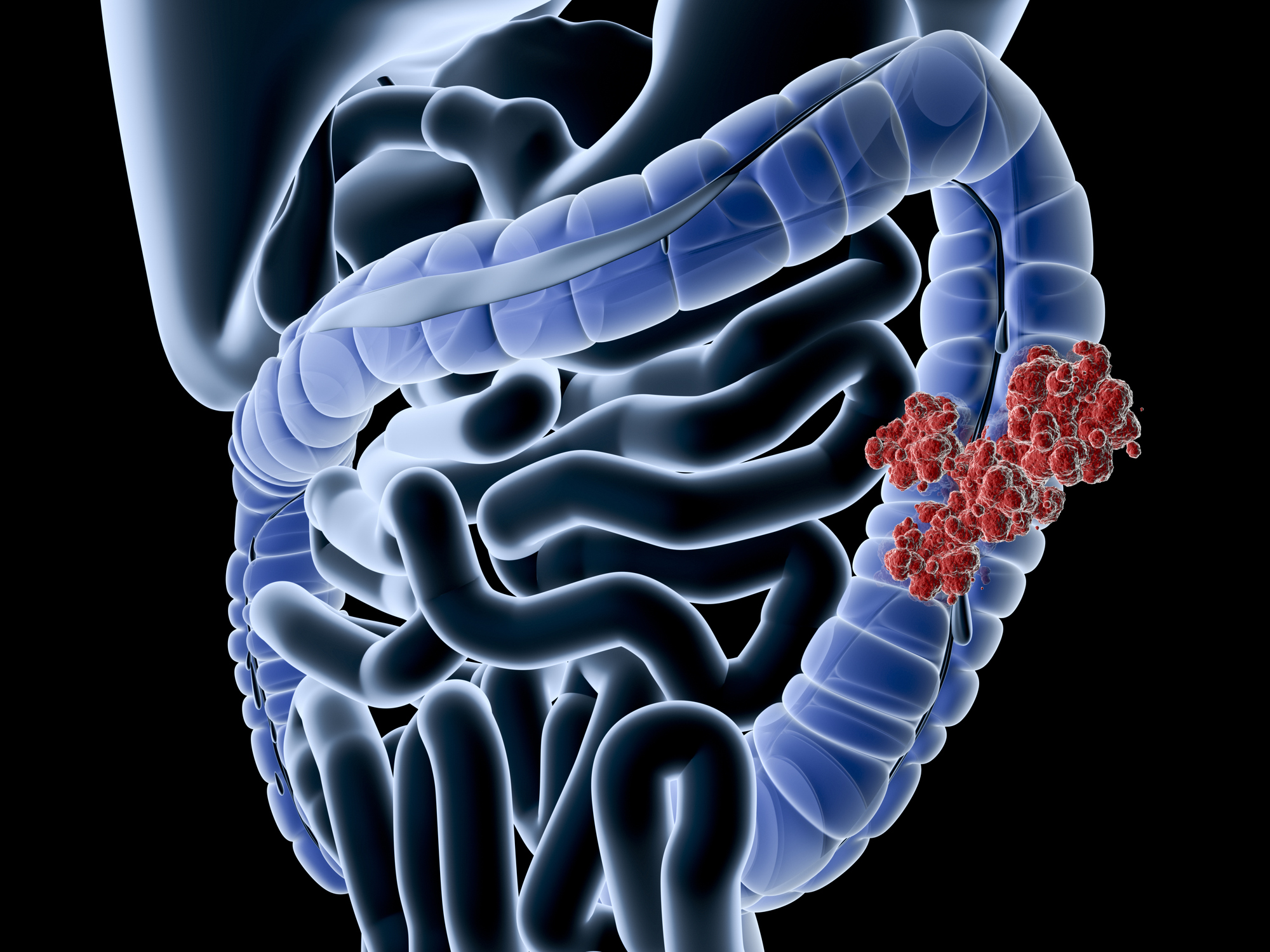 How Long Does It Take Colon Polyps to Turn Cancerous?