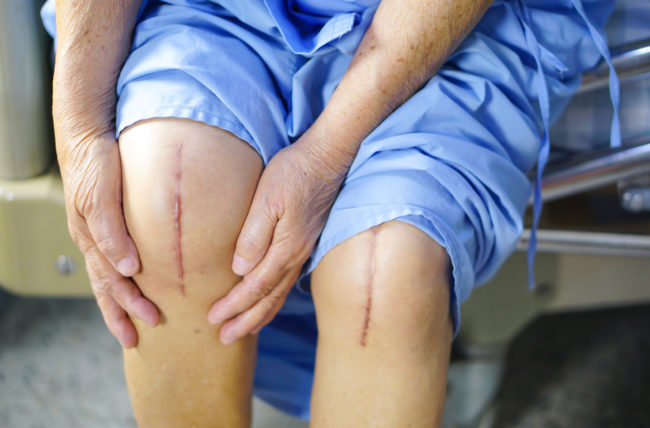 Should You Have Both Knees Replaced at the Same Time?