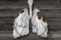 Do I Need Lung Cancer Screening If I've Quit Smoking?