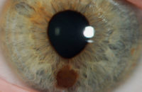 Eye-Melanoma