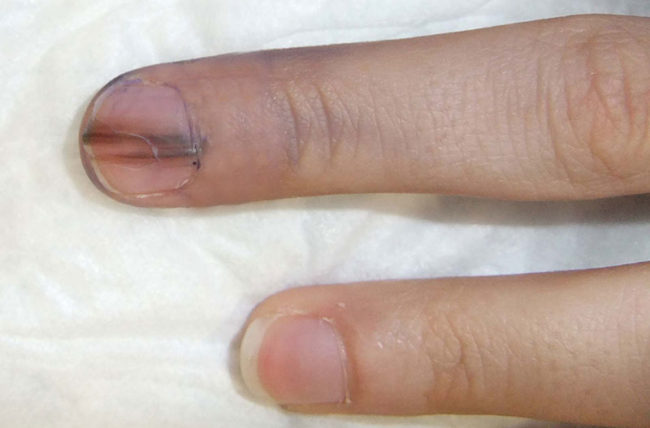 Should I Be Worried About That Red Line On My Nail Health Essentials From Cleveland Clinic