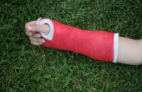 What's the Best Fix for Your Child's Broken Bone?