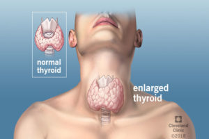 Hashimoto S Thyroiditis The Strange Sounding Condition You Can Have