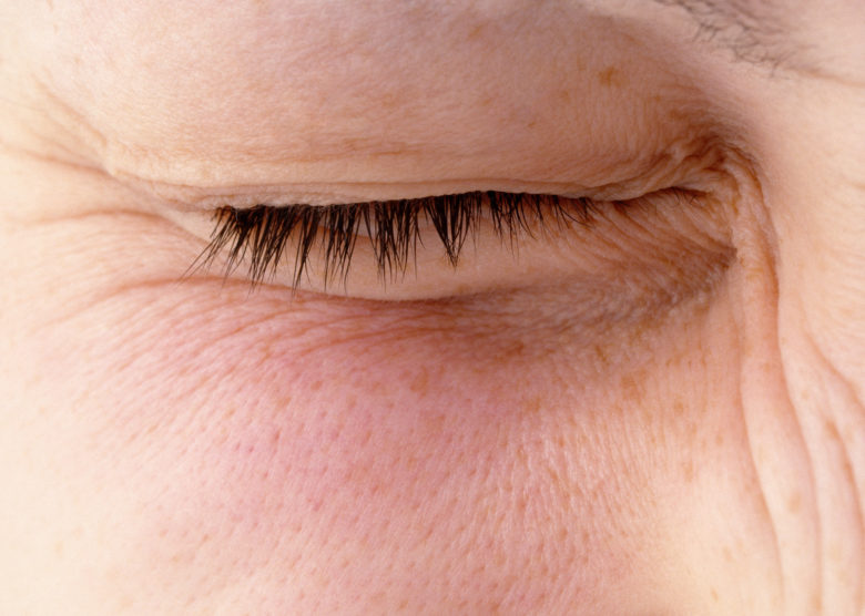 Your Eye Won't Stop Twitching? Here's What to Do