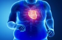 Overweight? Here's Why Those Extra Pounds Are Hard on Your Heart