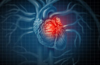 A Novel Way to Predict Heart Attacks — Years Before They Occur