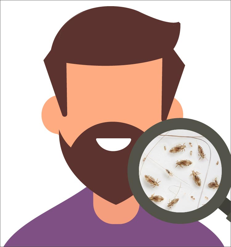 Lice in Facial Hair