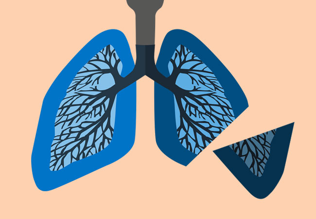 Life After Lobectomy: 6 Steps to a Smooth Recovery After Lung Cancer Surgery