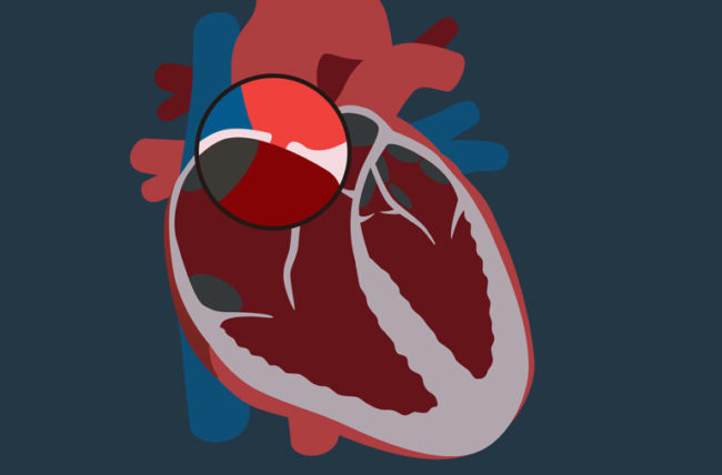 illustration of heart with hole